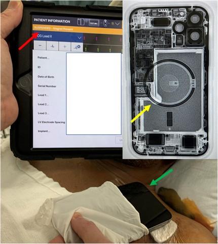Apple warnt Benutzer, ihr iPhone 12 von Herzschrittmachern fernzuhalten