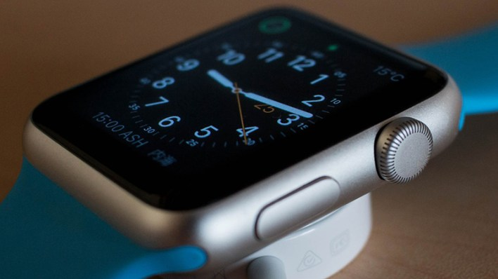 Apple Watch-Tipps